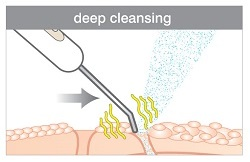 Deep Cleanse Ultrasonic Facial