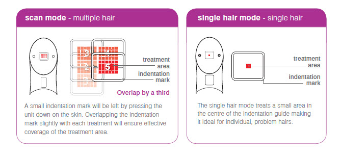 Skin types suitable to use laser hair removal